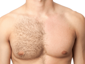 Male chest with half laser hair removal